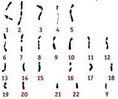 01S_3A_01_CaryotypeGametesSpermatozoides